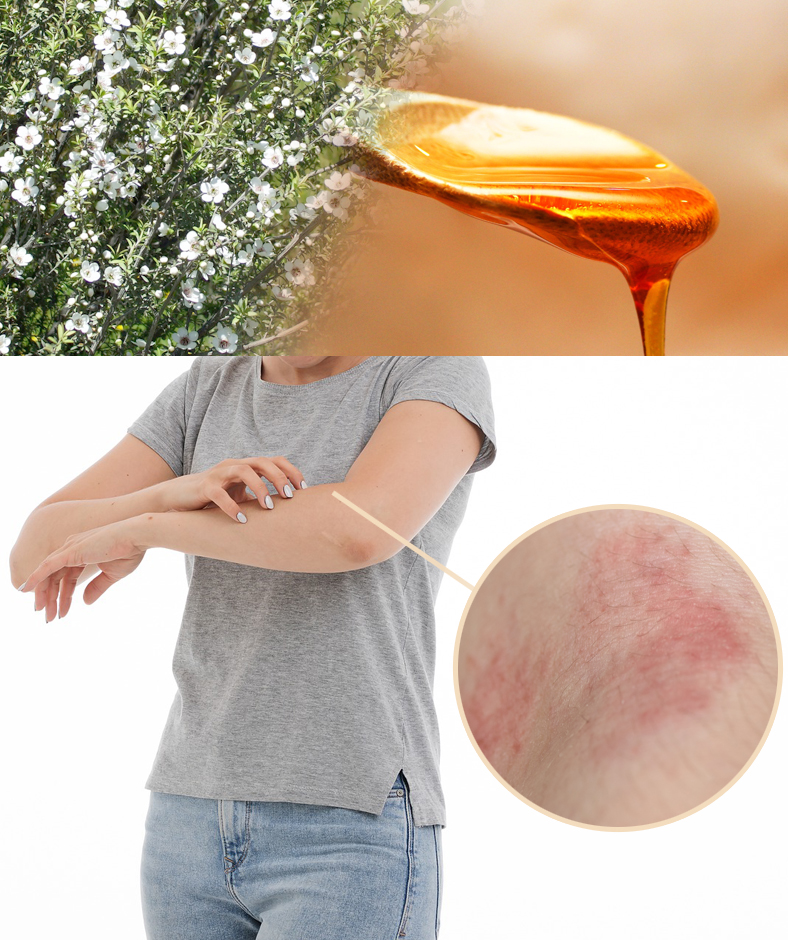 Eczema and Honey